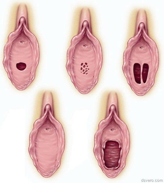 sperma-po-vneshnemu-vidu