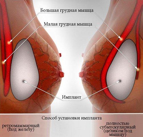 Два хуя в пизде  подборка порно видео Коллекция секс